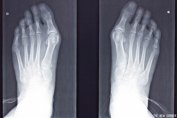 pieds-04