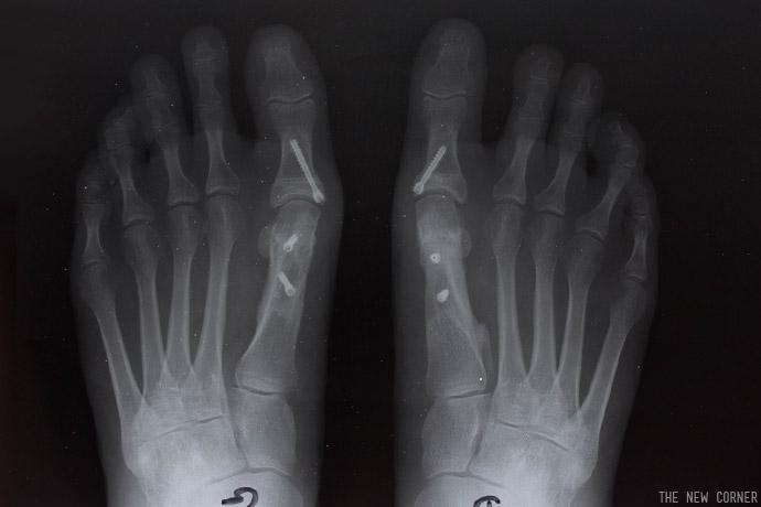 pieds-05